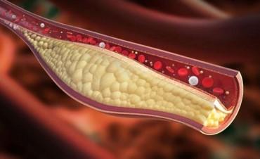 Prueban una vacuna que baja el colesterol