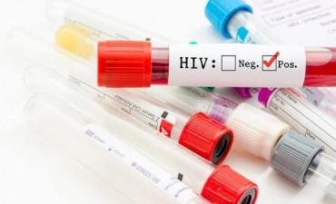 Nueva esperanza: el virus del VIH