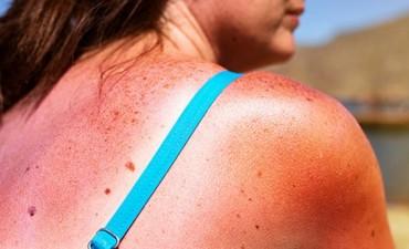 Melanoma: más de 10 argentinos mueren por semana de cáncer de piel