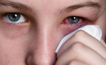 Cómo prevenir y tratar la conjuntivitis