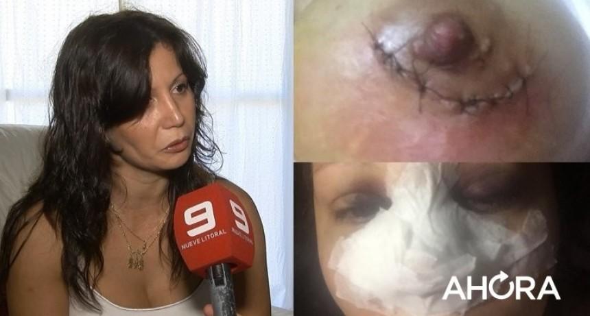 Cirujano del horror: el atroz relato de una víctima del Departamento Federal que vive en  Paraná