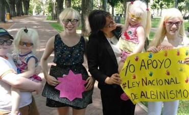 Argentina podría ser el primer país en proteger los derechos de los albinos