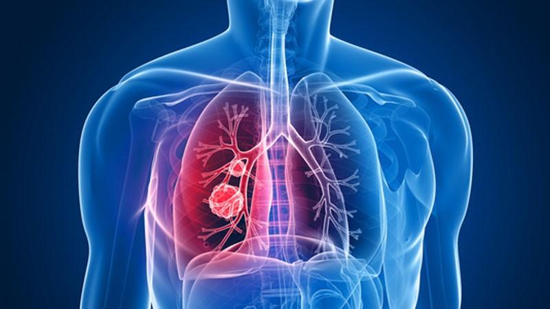 Del resfrío y la gripe a la neumonía: Hay que cuidarse de los primeros fríos