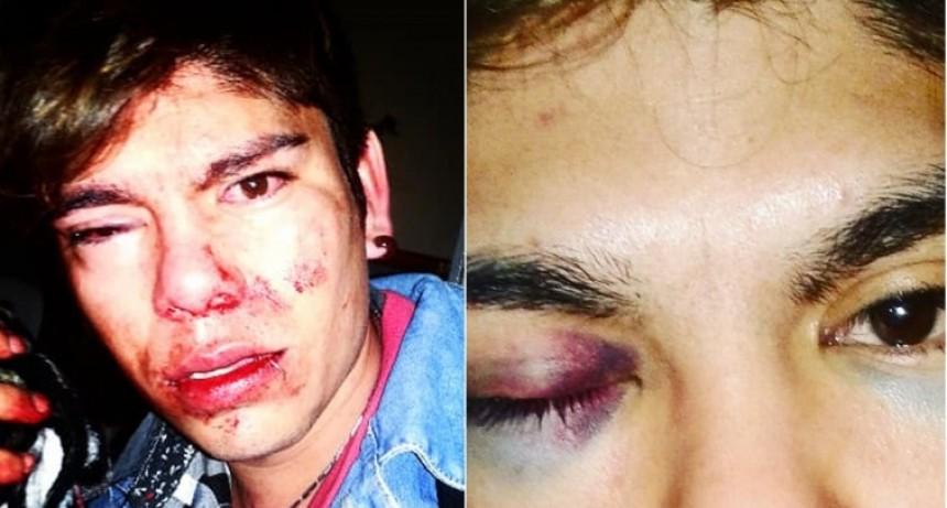 Conmoción: un joven fue golpeado brutalmente por ser gay