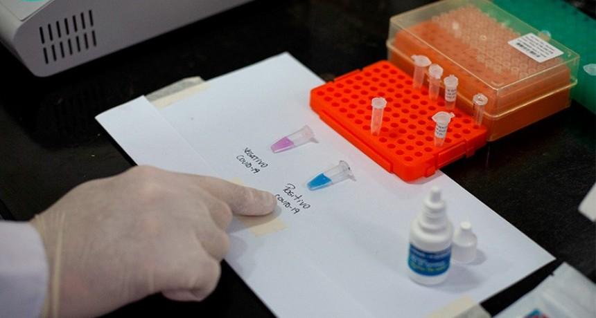 Covid 19: Gobierno recibirá primer lote de 10 mil tests de rápida detección