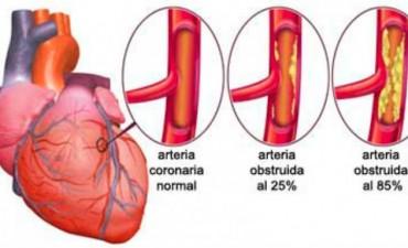 Aprueban un nuevo tratamiento contra la insuficiencia cardíaca