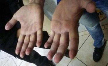Cómo se alteran las huellas dactilares y de qué forma se identifica a la persona