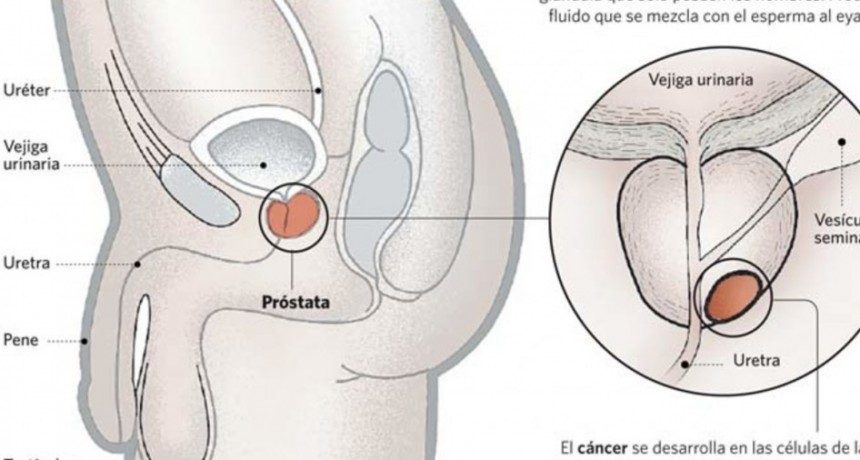 Cáncer de próstata: recomiendan adelantar cinco años los estudios preventivos