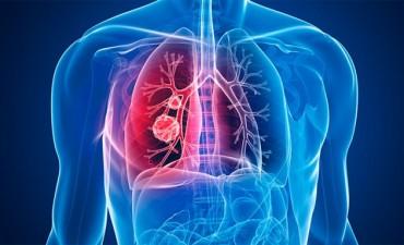 Los síntomas para detectar a tiempo el cáncer de pulmón