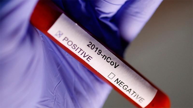 Se registraron 20 casos de coronavirus en seis departamentos: Seis son de Paraná