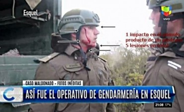 Caso Maldonado: las 5 heridas que despiertan sospechas sobre un gendarme