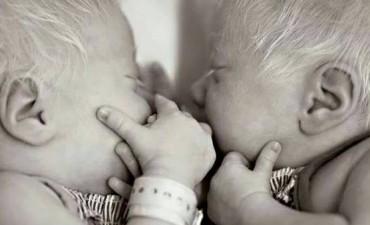 En el país hay 2.500 albinos y buscan protegerlos por ley