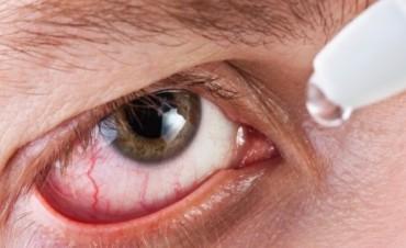 ¡Alerta conjuntivitis! Por qué aumentan los contagios en verano y cómo prevenirla